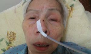 安裝鼻胃管(來源:PeoPo)